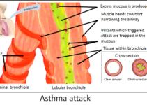 अस्थमा या दमा क्या हैं? (What is Asthma in Hindi) – जानिए हिंदी में।